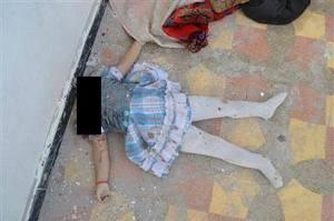 Bambina decapitata