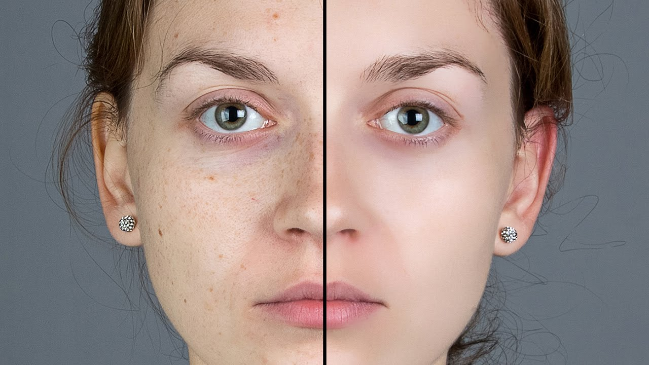 How To Quickly Smooth Skin And Remove Blemishes Amp Scars