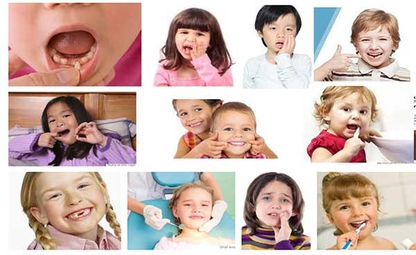 Menjaga Kesehatan Gigi Anak