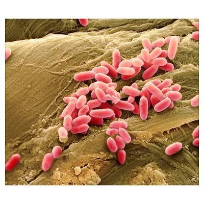 klasifikasi bakteri pdf, bakteri adalah, ciri-ciri bakteri, bentuk bakteri, klasifikasi bakteri ppt, jenis bakteri, materi bakteri, jelaskan pembagian klasifikasi bakteri, karakteristik bakteri, pengertian bakteri, bakteri gram positif dan negatif, pengertian bakteri, makalah bakteri, bakteri baik, bakteri yang menguntungkan dan manfaatnya, bakteri yang menguntungkan dan merugikan manusia, nama nama bakteri, probiotik, bakteri yang menguntungkan di bidang pertanian, bakteri yang merugikan.