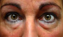 Santé : Les recettes pour atténuer les poches sous les yeux