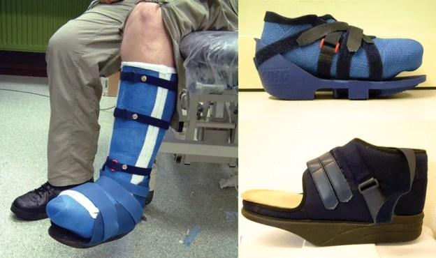 a randomized trial of 60 diabetic patients with uninfected, non- ischemic plantar forefoot ulcers, three removable devices— a bivalved TCC (left), a custom-cast removable fiberglass shoe (top right), and a rocker-sole forefoot offloading shoe (bottom right)—didn't differ significantly in clinical effectiveness. (Photos courtesy of Jaap Van Netten, PhD.)