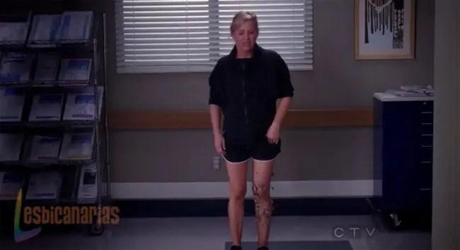 Arizona y su pierna rota