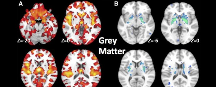 cerveau schizophrène