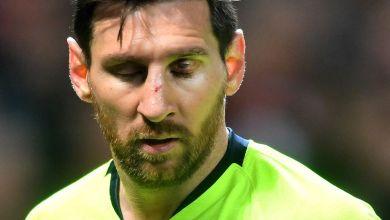 Photo de Messi rétabli, Dembélé prêt à «participer» contre Manchester