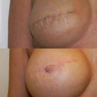 Medical Tattoo Breast Surgery Southampton   Lesley Andrews Seal Medical Tattoo Breast Surgery Southampton