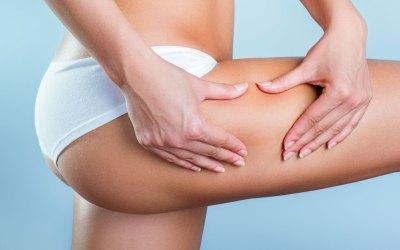 3 astuces anti-cellulite pour préparer l'été !