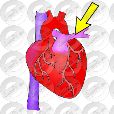 Pulmonary Artery Picture for Classroom Therapy Use