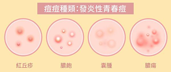 痘痘保養步驟
