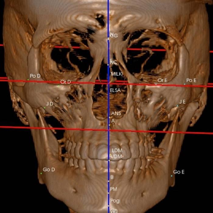 Tomografia Craniofacial Tridimensional