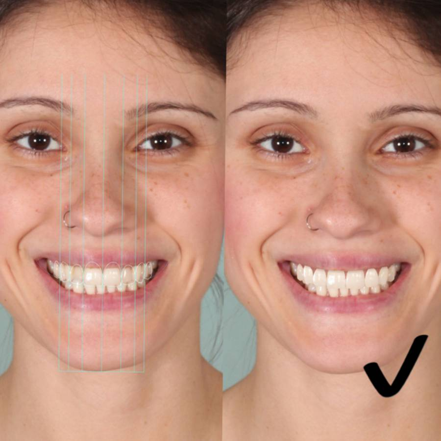 Análise e Simulação Digital do Sorriso