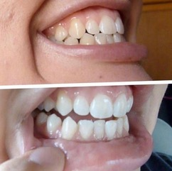 A before and after image of using Warpaint natural teeth whitener