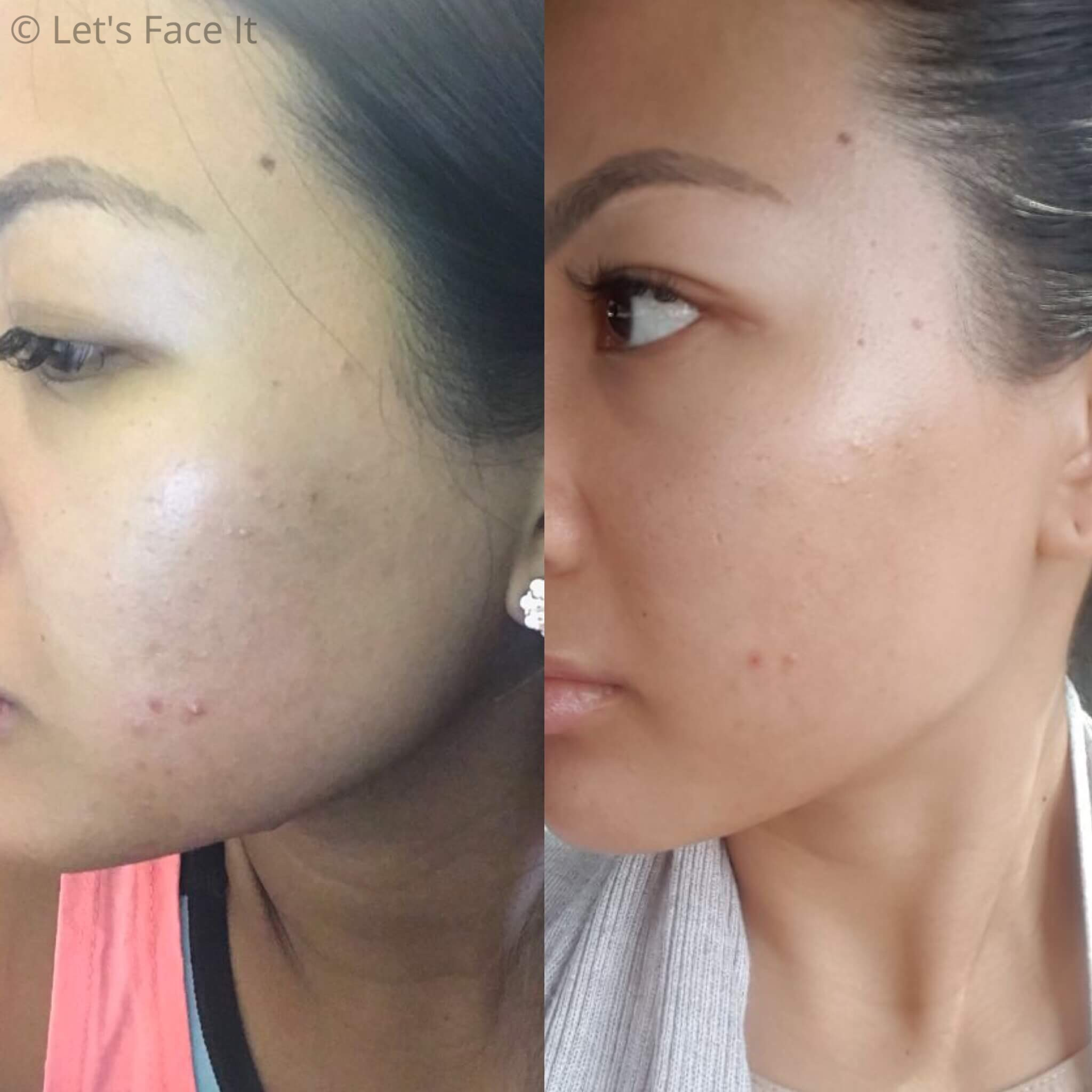 COSRX BHA Blackhead Power Liquid Before and After Results