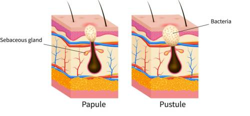 Korean skincare guide papule and pustule acne
