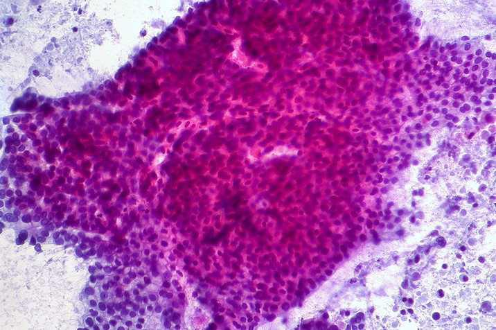 Micrscope Slide Of Adenocarcinoma, Stained Fuschia And Purple