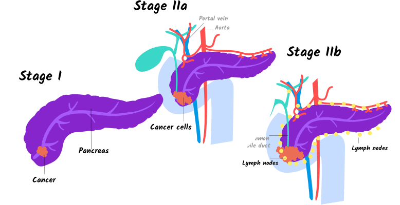 Illustration of stage I and stage IIa and IIb pancreatic cancer for mobile