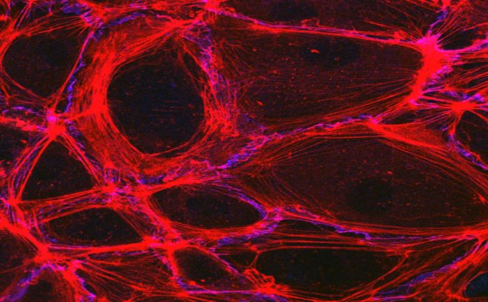 Testing a New Drug to Attack Pancreatic Tumor Blood Vessels