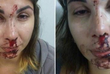 Mulher é agredida pelo marido e filho denuncia caso em rede social