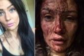 Após ser espancada, namorada de jogador posta fotos nas redes sociais