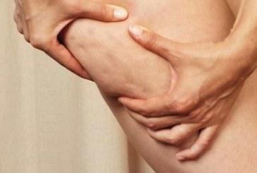 8 mitos e verdades sobre a celulite e como combater o problema