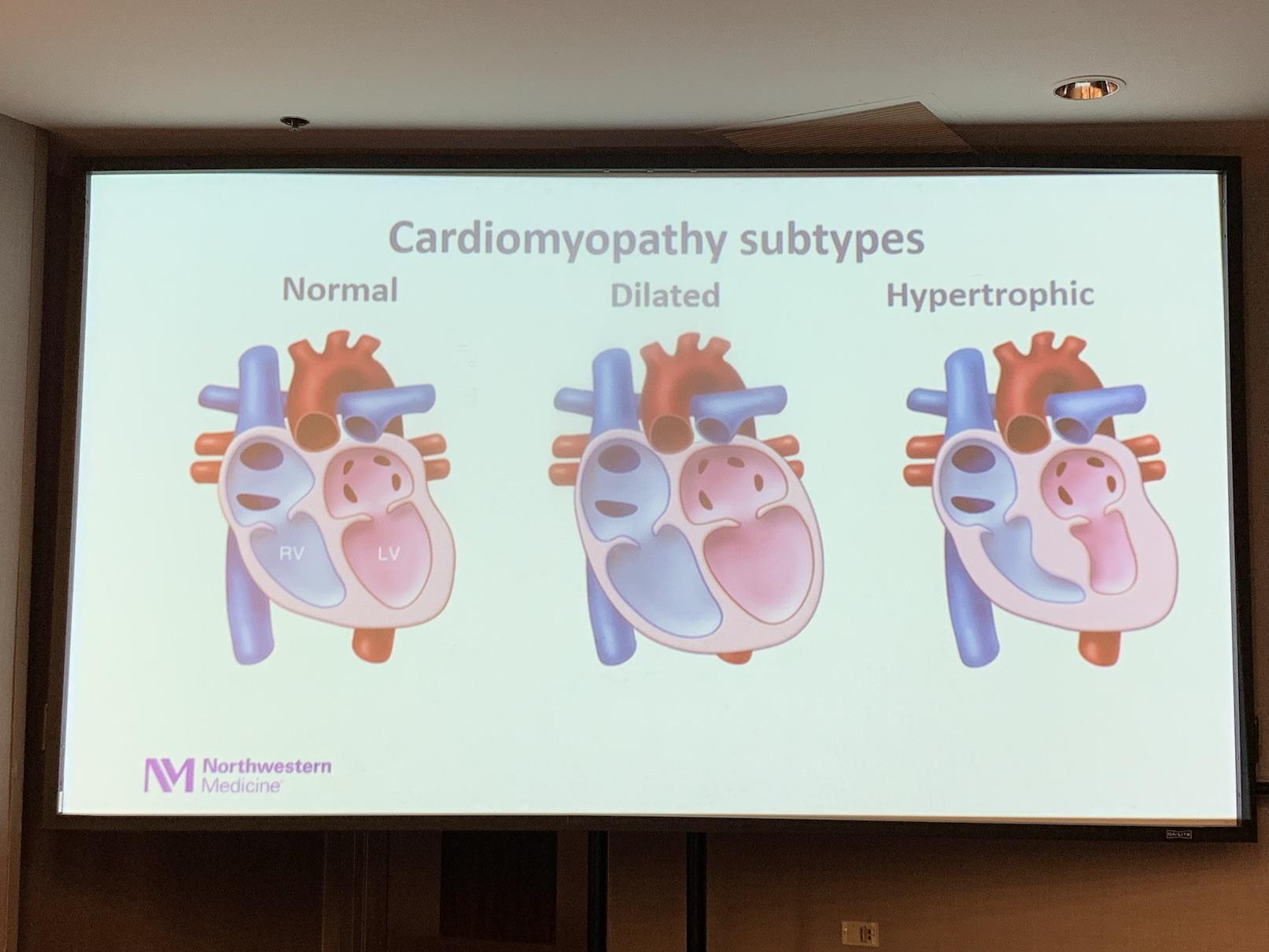 Cardiomyopathie subtypes | Dr Elizabeth McNally
