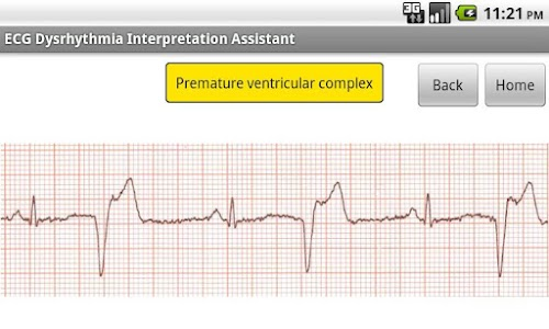 ECG Interpretation Assistant screenshot 3