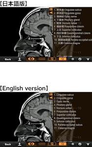 Interactive CT & MRI Anat.Lite screenshot 2