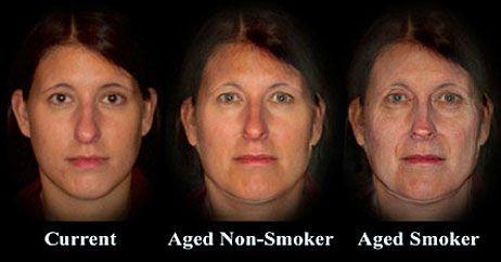 κάπνισμα και ρυτίδες