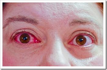 DSC_0270pink-eye
