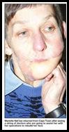 Nel Anna half a face shot away farm attack cannot afford plastic surgery Tabita Lita Fourie fundraising