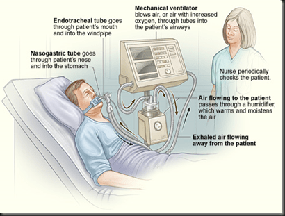 Nursing Articles: Ventilator and its Management