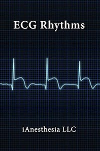 ECG Rhythms (The EKG Guide) screenshot 1