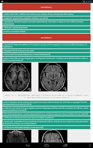 NeuroXdiag screenshot 7