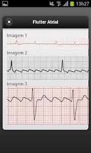 ECG screenshot 5