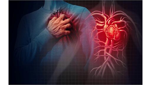 Heart disease - Flavonoids