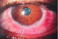 macam-macam penyakit mata konjungtivitis