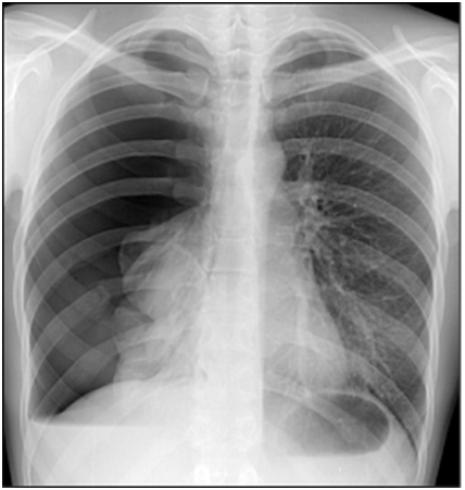 Hemopneumothorax - X-ray of the chest in the vertical