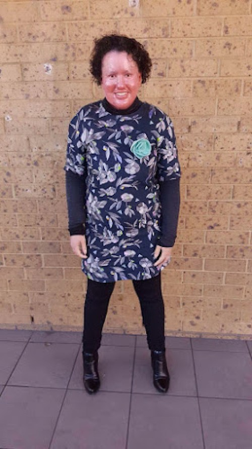 Carly Findlay standing against a brick wall wearing black leggings, black boots and blue floral dress