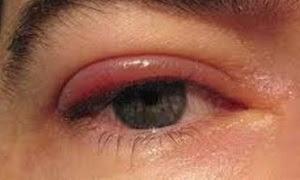 sakit mata menular