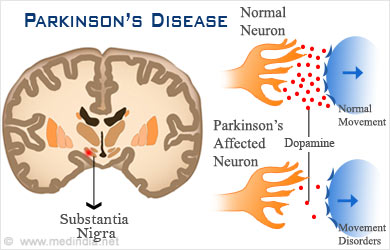 Kinesiology & Sport Review: Parkinson's Disease: The ...