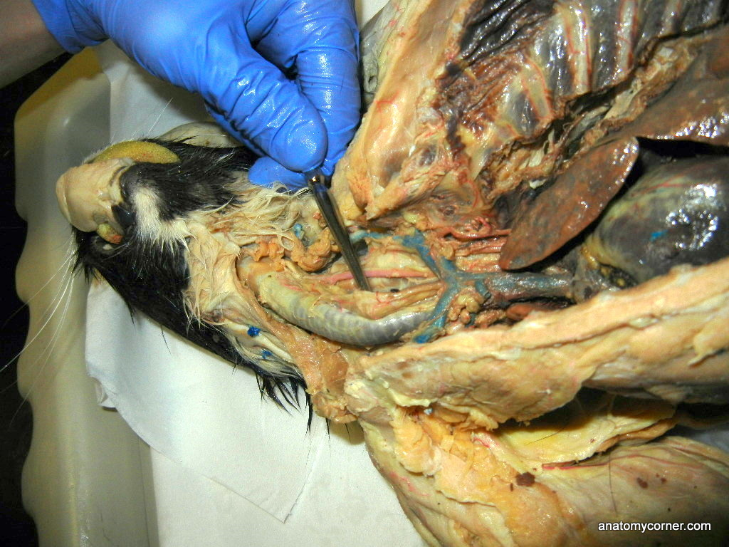Esophagus Probe