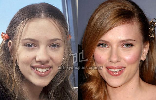 La nueva nariz operada de Scarlett Johansson