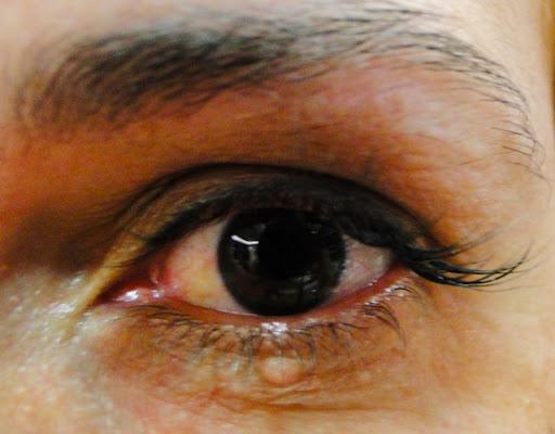 Olho aberto com extensao
