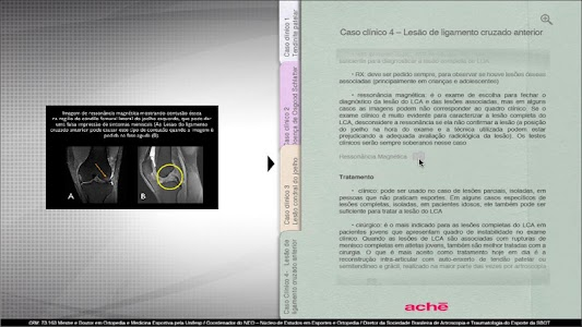 Aché - Ortopedia Joelho screenshot 4