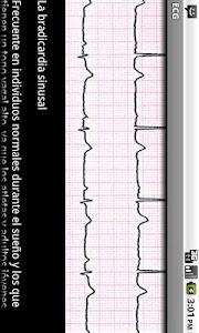 Electrocardiograma ECG Tipos screenshot 5