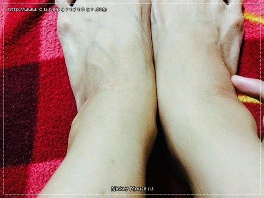 the-legs-were-swollen-because-i-doubt-i-need-to-get-an-answer-ขาบวม-ไม่รู้สาเหตุ