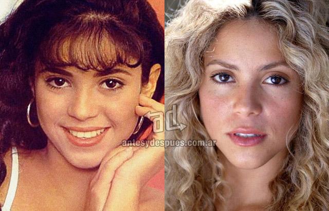 La nueva nariz operada de Shakira