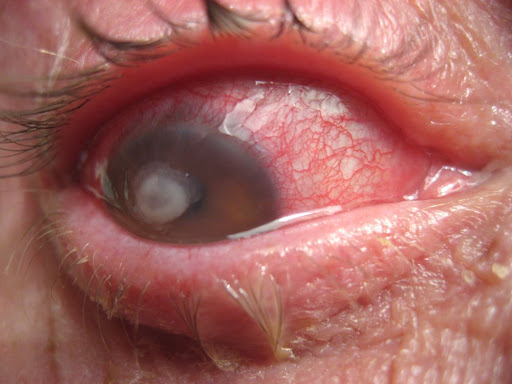 Always Look For A White Patch Or Mark On The Cornea When Seeing An Eye That Is Red Painful Especially Check In Contact Lens