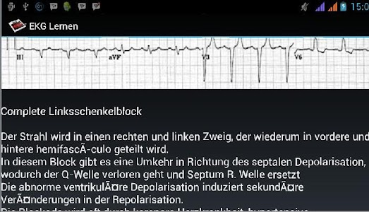 EKG Lernen screenshot 4