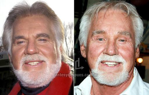 kenny rogers antes y despues de la cirugia plastica